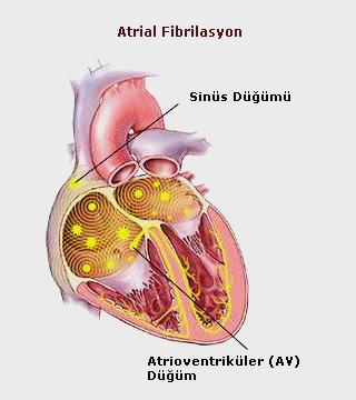 atrial-fibrilasyon01